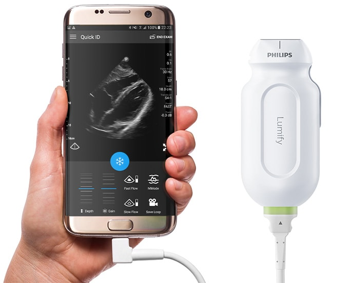 Philips Lumify Ultrasound